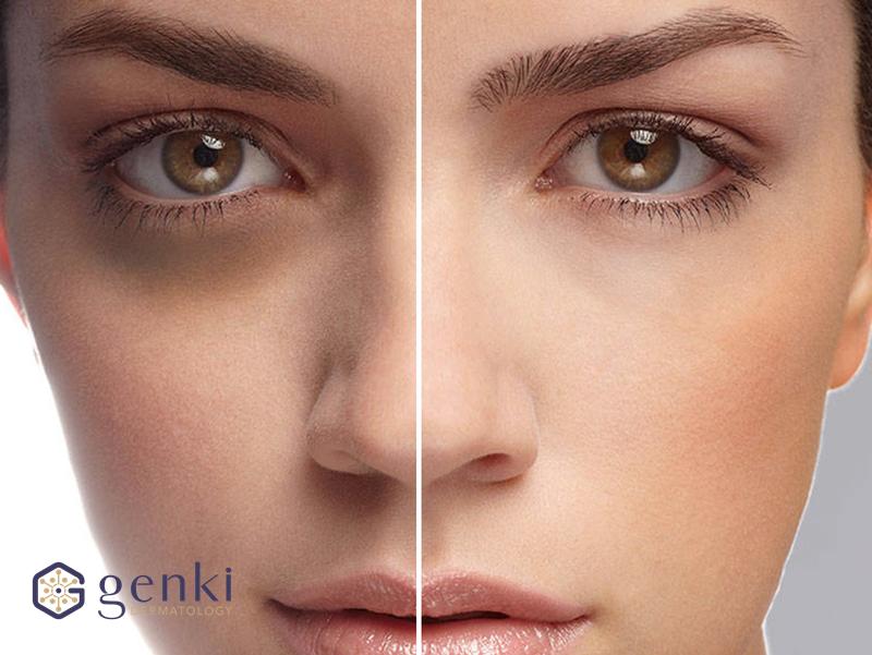 Tsubaki Genki: Món quà trị thâm dành cho đôi mắt