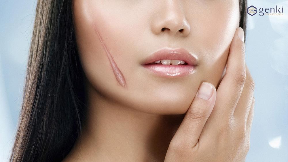 Kodemari Genki: Điều trị sẹo các loại