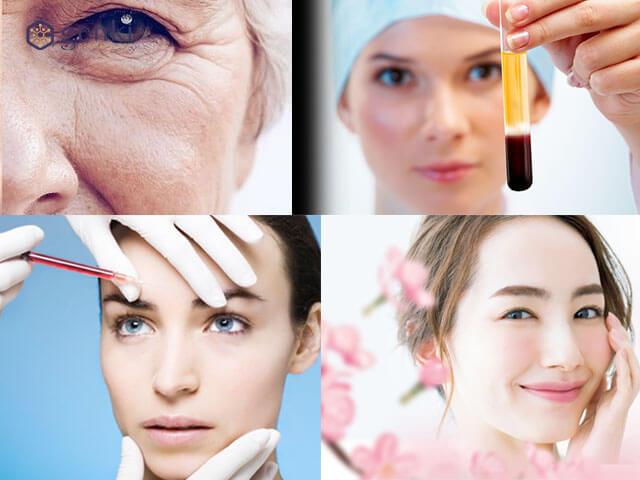 """Tiêm tế bào gốc - Xu hướng giúp """"hồi xuân"""" cho làn da có đáng tin cậy?"""