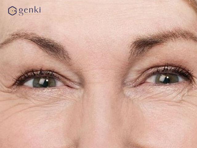 """Nếp nhăn quanh mắt, liệu có phép màu nào cho chị em tuổi """"băm""""?"""