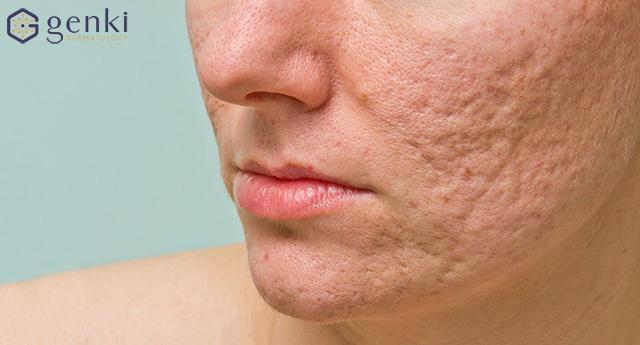 Điểm danh các cách trị sẹo rỗ trên mặt làm bạn ngạc nhiên vì chất lượng bất ngờ