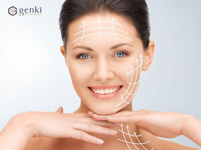 Công nghệ căng da bằng chỉ Silhouette Soft: Làm đẹp thêm các đường nét cho khuôn mặt