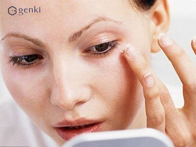Căng da vùng mí mắt bằng công nghệ Trẻ hóa da số 1 Thermage FLX với đầu Tip 4.0