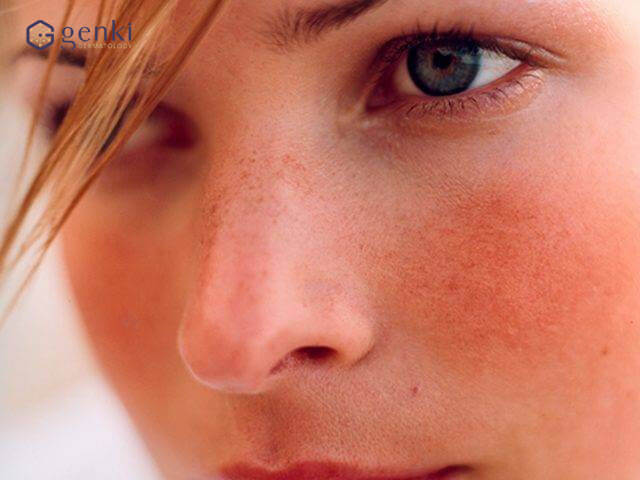 Lối thoát nào cho làn da bị rối loạn sắc tố lâu năm?