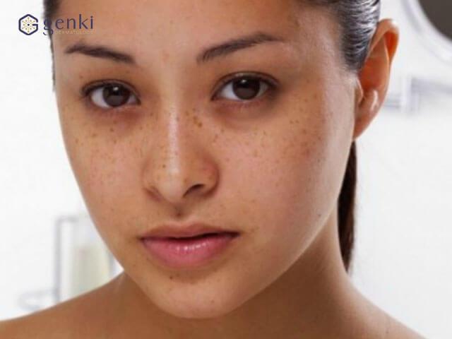 4 sự thật bạn cần biết về đốm nâu trước khi quá muộn