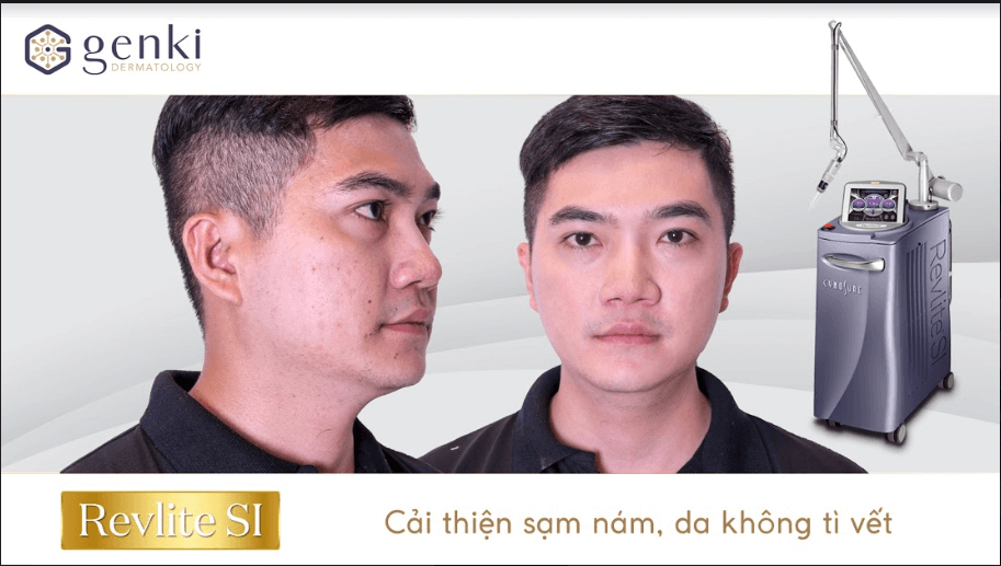 Giật mình 5 nguyên nhân hàng đầu gây nám da và sự kì diệu của công nghệ Laser Revlite Si