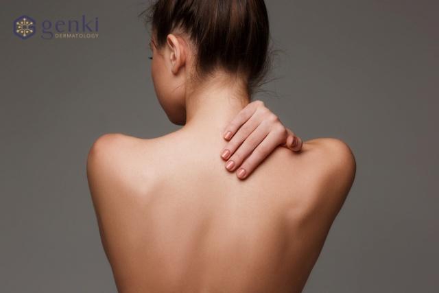 Kinh ngạc tìm ra cách trị mụn thâm ở lưng hiệu quả