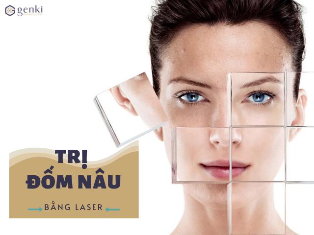 Bạn đã biết bí quyết trị đốm nâu bằng laser cực chuẩn này?