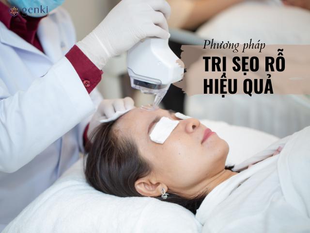 Phương pháp điều trị sẹo rỗ hiệu quả nhất ngay tại TpHCM