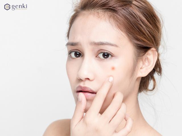 Chăm sóc da mặt bị mụn với tinh chất tái tạo da, đẩy lùi mụn thâm