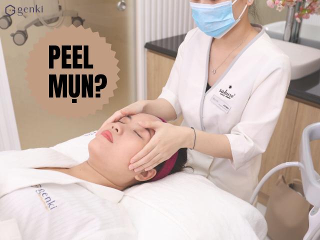Peel mụn: Thổi bay mụn và thanh lọc da bằng oxy tươi