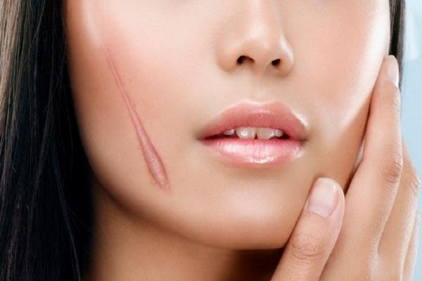 Sẹo lồi là gì? Những phương pháp trị sẹo lồi hiệu quả nhất