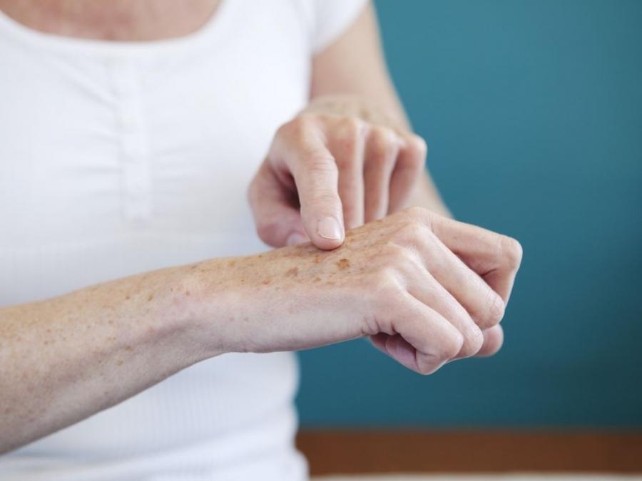 3 cách trị nám da tay tại nhà đơn giản, hiệu quả