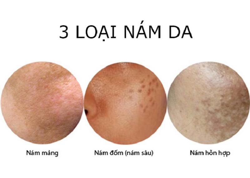 Làm thế nào để phân biệt các loại nám da đơn giản và chính xác nhất