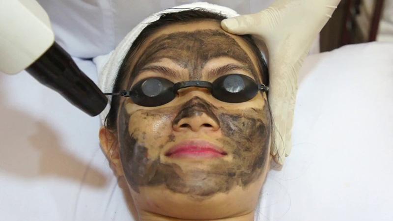 Những ai nên chọn công nghệ Laser co2 fractional trị lỗ chân lông to