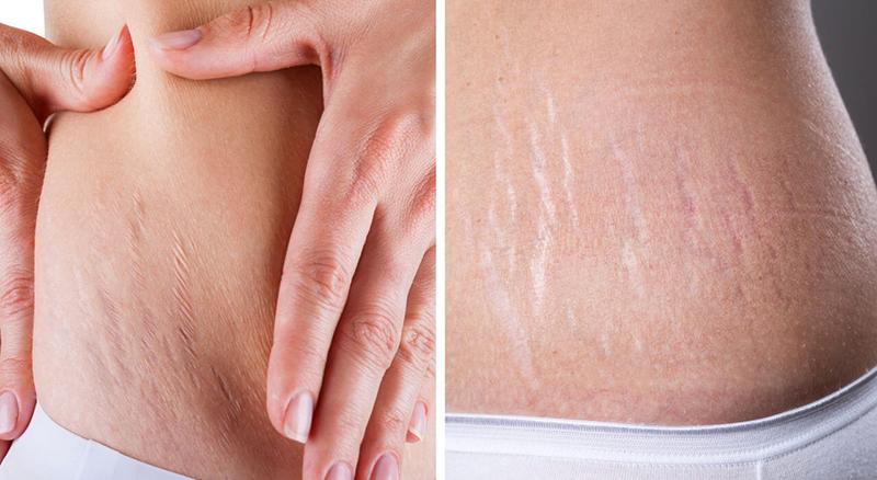 Công nghệ Laser co2 fractional trị rạn da có hiệu quả không