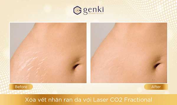 Laser CO2 Fractional xóa rạn da