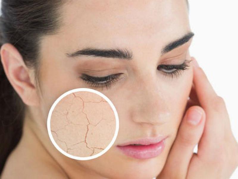 có nhiều loại da khác nhau đòi hỏi cần cách chăm sóc phù hợp