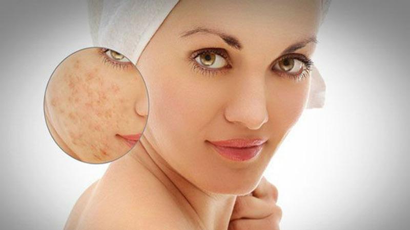 ghép da thích hợp với các vết sẹo mới đang hoạt động