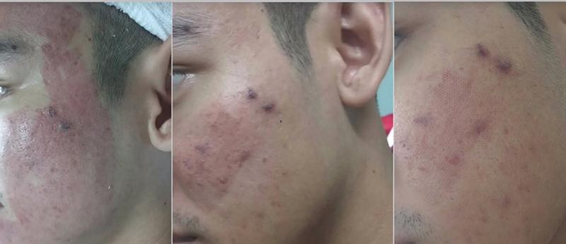 Laser co2 fractional có khả năng điều trị nhiều vấn đề về da
