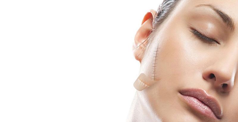 laser co2 fractional trị sẹo lồi an toàn không gây đau