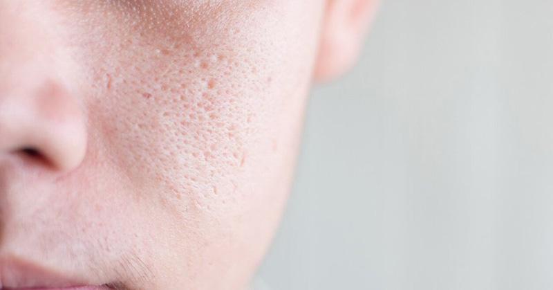Có nhiều nguyên nhân khác nhau khiến cho lỗ chân lông to