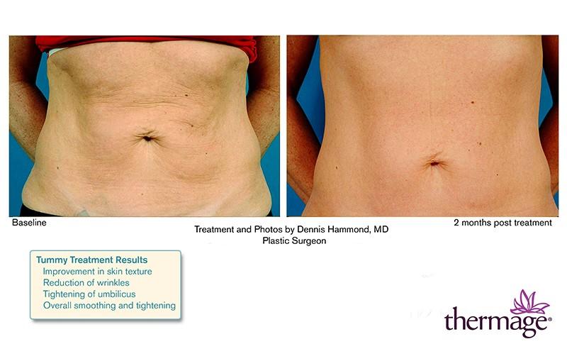 trẻ hóa vùng da bụng nhờ thermage flx